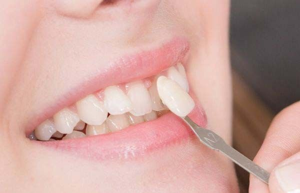 Top Three Tips in Maximising the Life of Your Porcelain Veneers