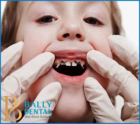 Cách điều trị tủy răng sữa cho trẻ em AN TOÀN - KHÔNG ĐAU nhức