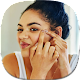 Home Remedies for Blackheads Download for PC Windows 10/8/7