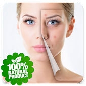 Skin Treatment - Get Rid Of Acne And Pimples Natur