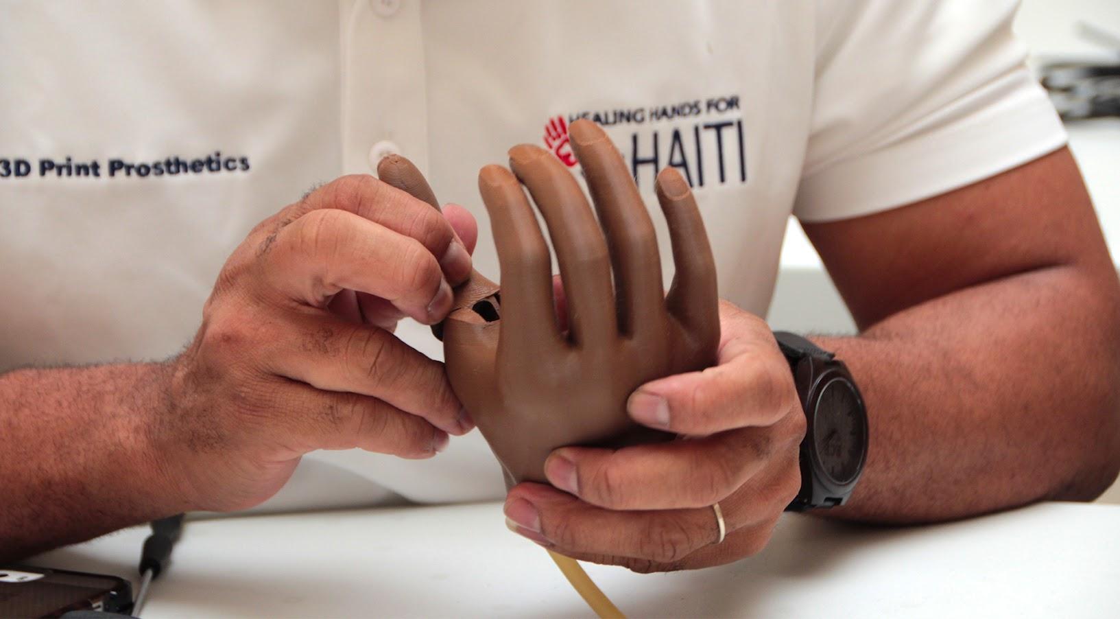 Трехмерное протезирование улучшает жизнь в самых бедных регионах мира