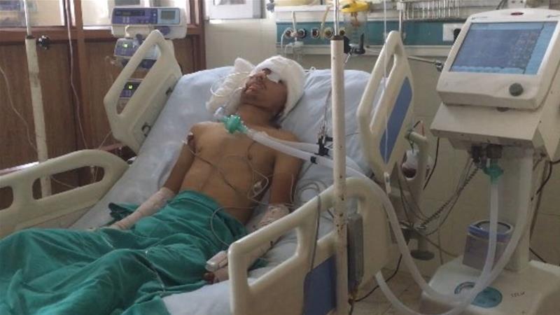 Kashmir: Civilians severely wounded in pellet gun attacks