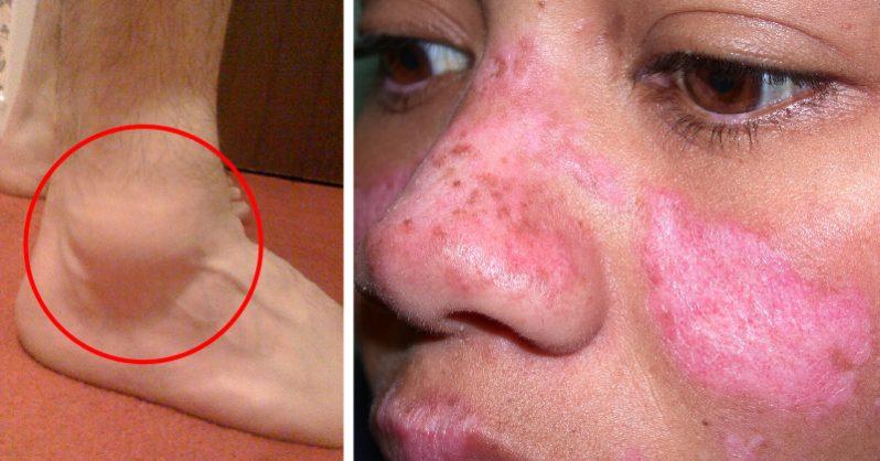 Lupus Symptoms: 13 Ways to Spot Lupus Disease Early