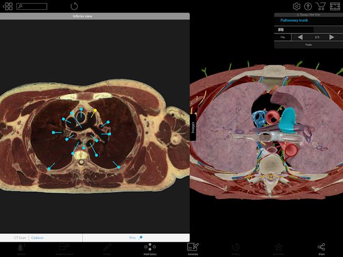 Human Anatomy Atlas 2018 Complete 3d Human Body On Google Play