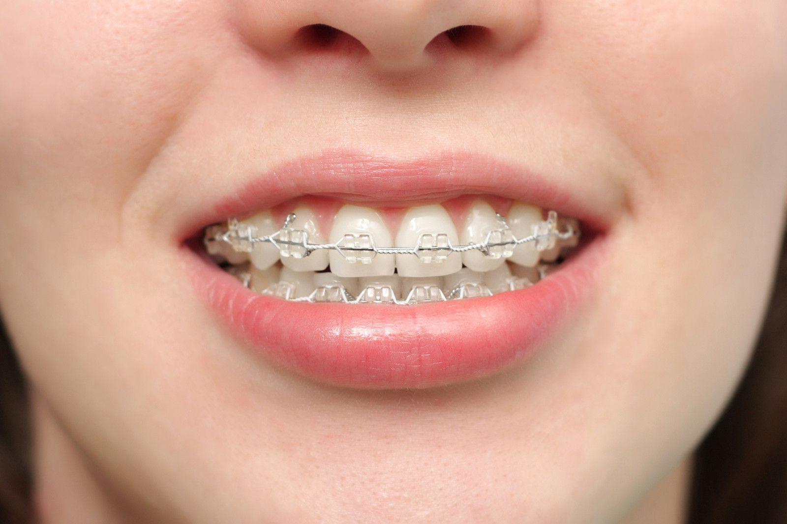 Nguyên nhân khiến niềng răng thất bại - Nha khoa thẩm mỹ Bally