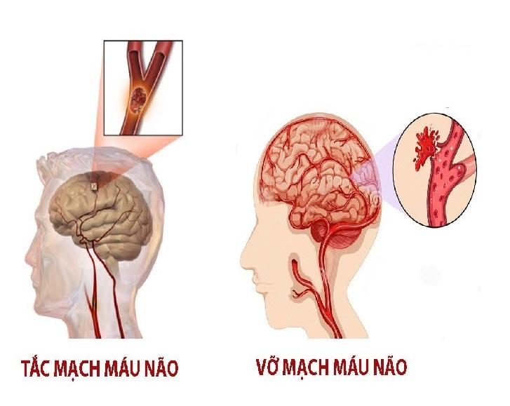 Tai biến mạch máu não dẫn đến cơn đau đầu nguy hiểm