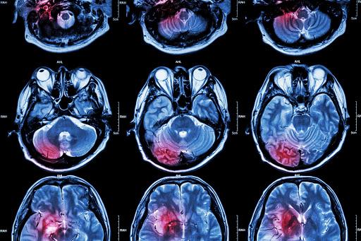 One brain injury raises dementia risk decades later, study shows