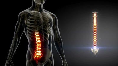 mri-spine-v-acmd.jpg