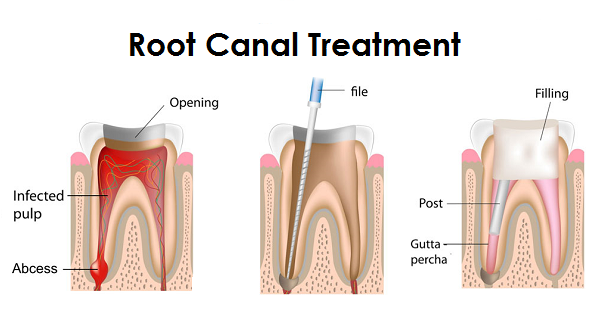 endodontic-treatment-root-canal.png