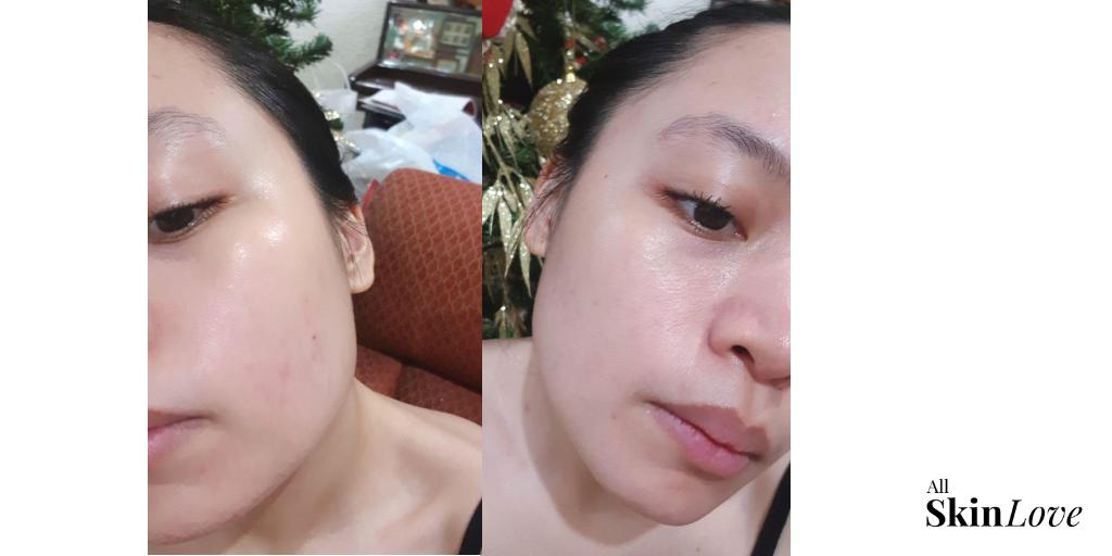 After - no make up