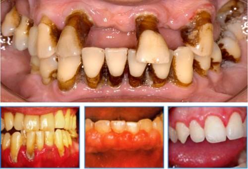 Tìm hiểu 4 trường hợp nhất định không nên tẩy trắng răng