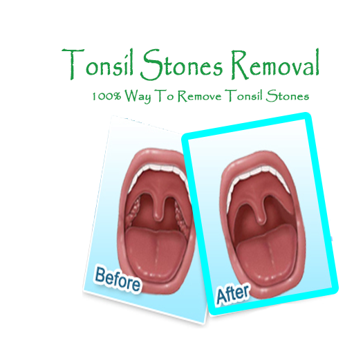 Natural Tonsil Stones Removal