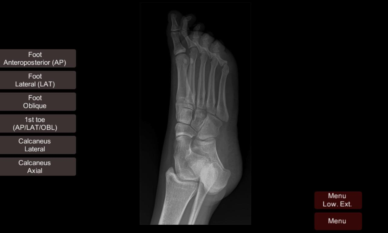 Unique Foot Anatomy X Ray Adornment - Human Anatomy Images ...