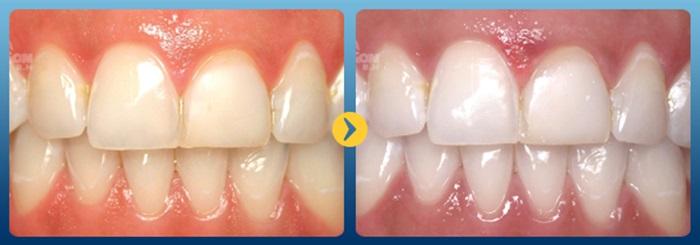 Những Bí quyết làm răng trắng từ trái cây trong bếp nhà bạn