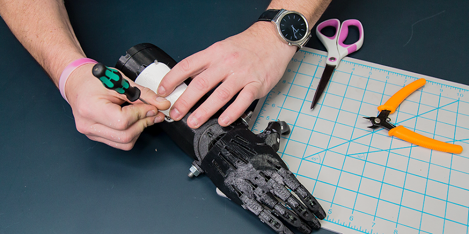 The Future of 3D Printed Prosthetic Hands