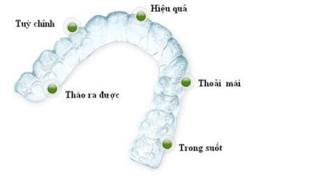 Ưu điểm nổi bật của niềng răng mắc cài tự buộc - Nha khoa Bally 1