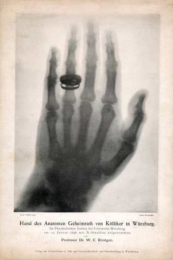 Picture of the hand of the anatomist Albert von Kölliker taken on the occasion of the first public lecture on January 23, 1896.