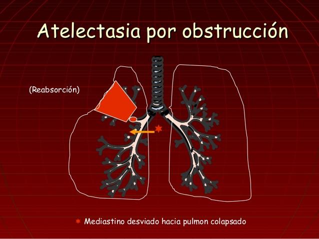 atelectasia por obstruccion.jpg