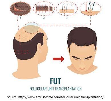 Follicular Unit Transplantation