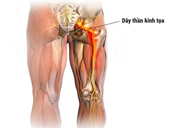Đau dây thần kinh tọa xảy ra do dây thần kinh hông to bị chèn ép hoặc tổn thương