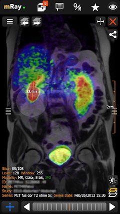 Best android apps for dicom viewer - AndroidMeta