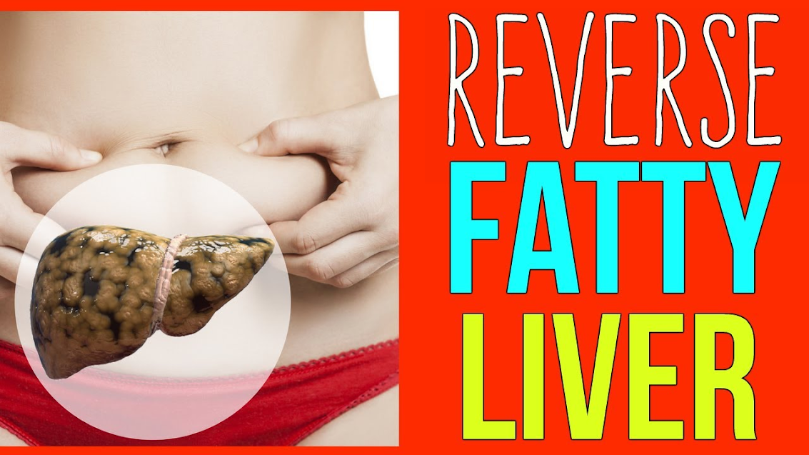 Did you know it's possible to reverse the effects of a fatty liver?