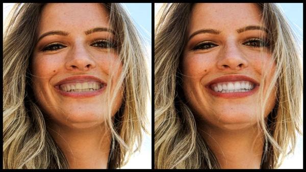 antes e depois da foto de uma mulher loira sendo que uma das fotos o dente está mais branco