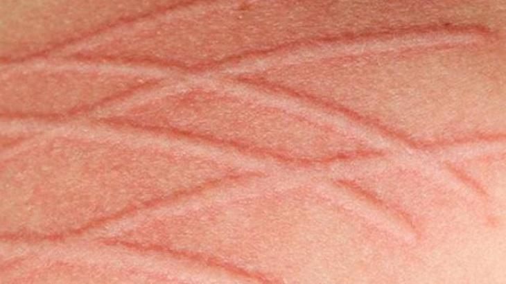 Bệnh mề đay cholinergic liên quan mật thiết tới chất acetylcholine.