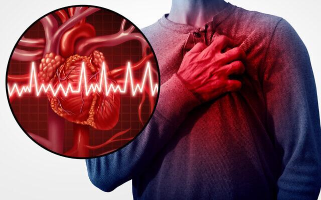 النوبة القلبية Heart Attack