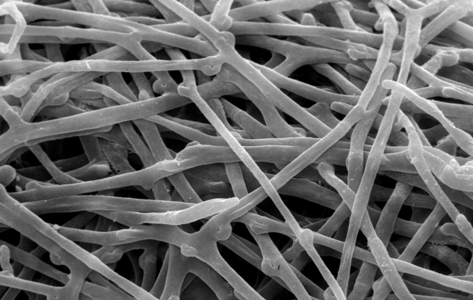micelio-ectomicorriza.gif