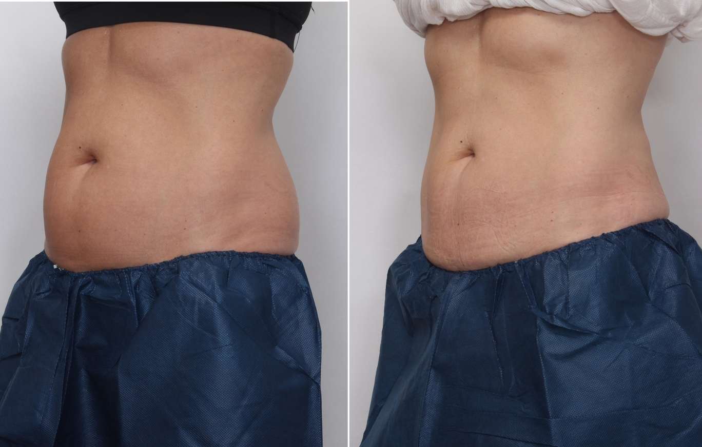 Before and After CoolSculpting: Real Cosmedica Results