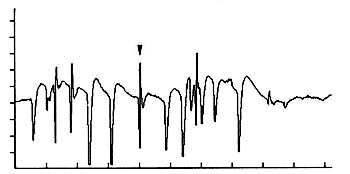 Positive sharp waves (PSWs) mixed with fibrillation potentials recorded from a forearm flexor muscle in a dog