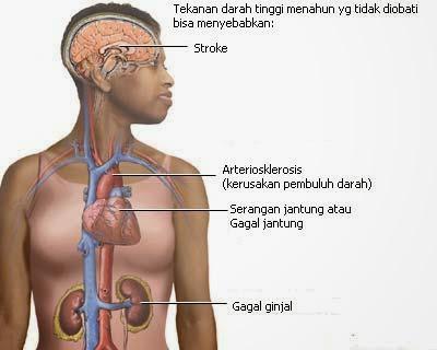 Suplemen Herbal Penderita Hipertensi