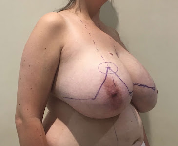Pre - Breast Reduction Surgery