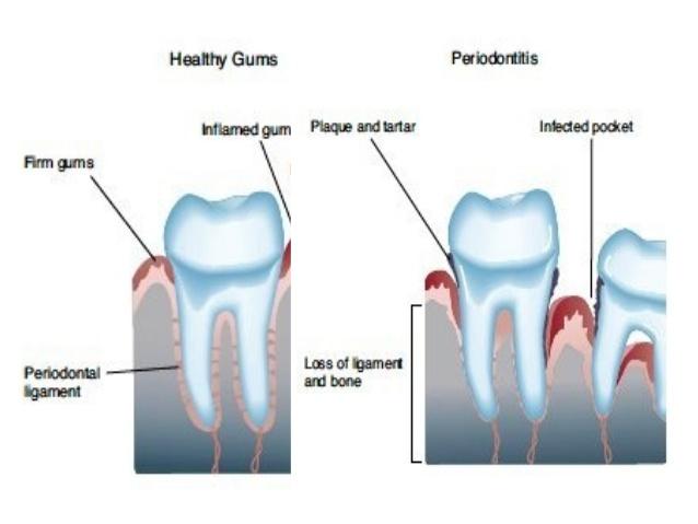 juvenile-periodontitis-7-638.jpg