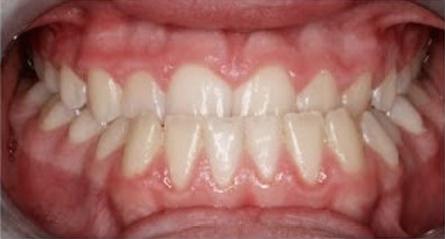 orthodontist-in-richmond-7