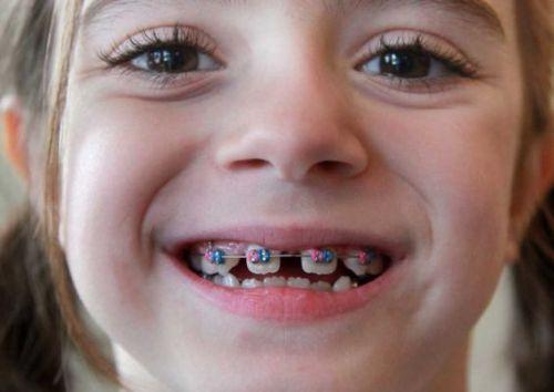 Các phương pháp niềng răng hiệu quả nhất hiện nay