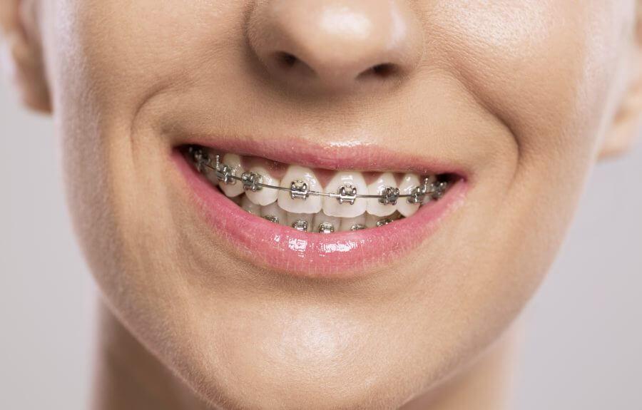 Thời gian niềng răng trong bao lâu phụ thuộc vào tiêu chí nào?