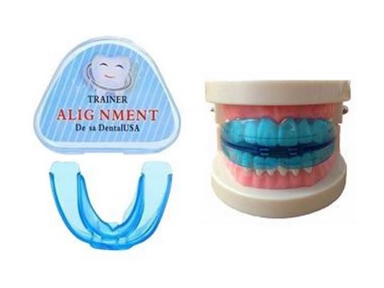 Alat Perata Gigi alat meratakan gigi alat merapikan gigi behel gigi