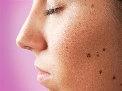 Đừng chủ quan nếu thấy làn da của mình gặp phải những triệu chứng bất thường sau đây vì nó cũng có thể ngầm báo hiệu một vài căn bệnh nguy hiểm mà bạn chẳng ngờ đến.