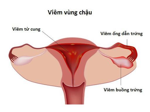 viem-vung-chau-la-benh-gi-nguyen-nhan-trieu-chung-va-anh-huong