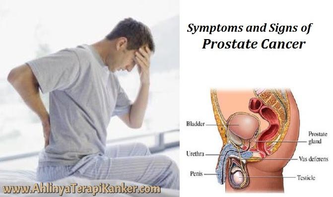 Obat Kanker Prostat Tanpa Operasi, Ampuh Menyembuhkan Penyakit Kanker Prostat Secara Alami