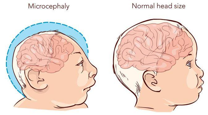 Pengertian-Penyebab-Gejala-Pengobatan-Penyakit-Microcephaly