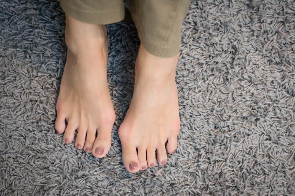 de ce picioarele și gleznele mele sunt umflate și roșii