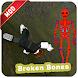 Mod Broken Bones Helper (Not official)