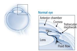 A visual representation showing a close up of narrow angle glaucoma.