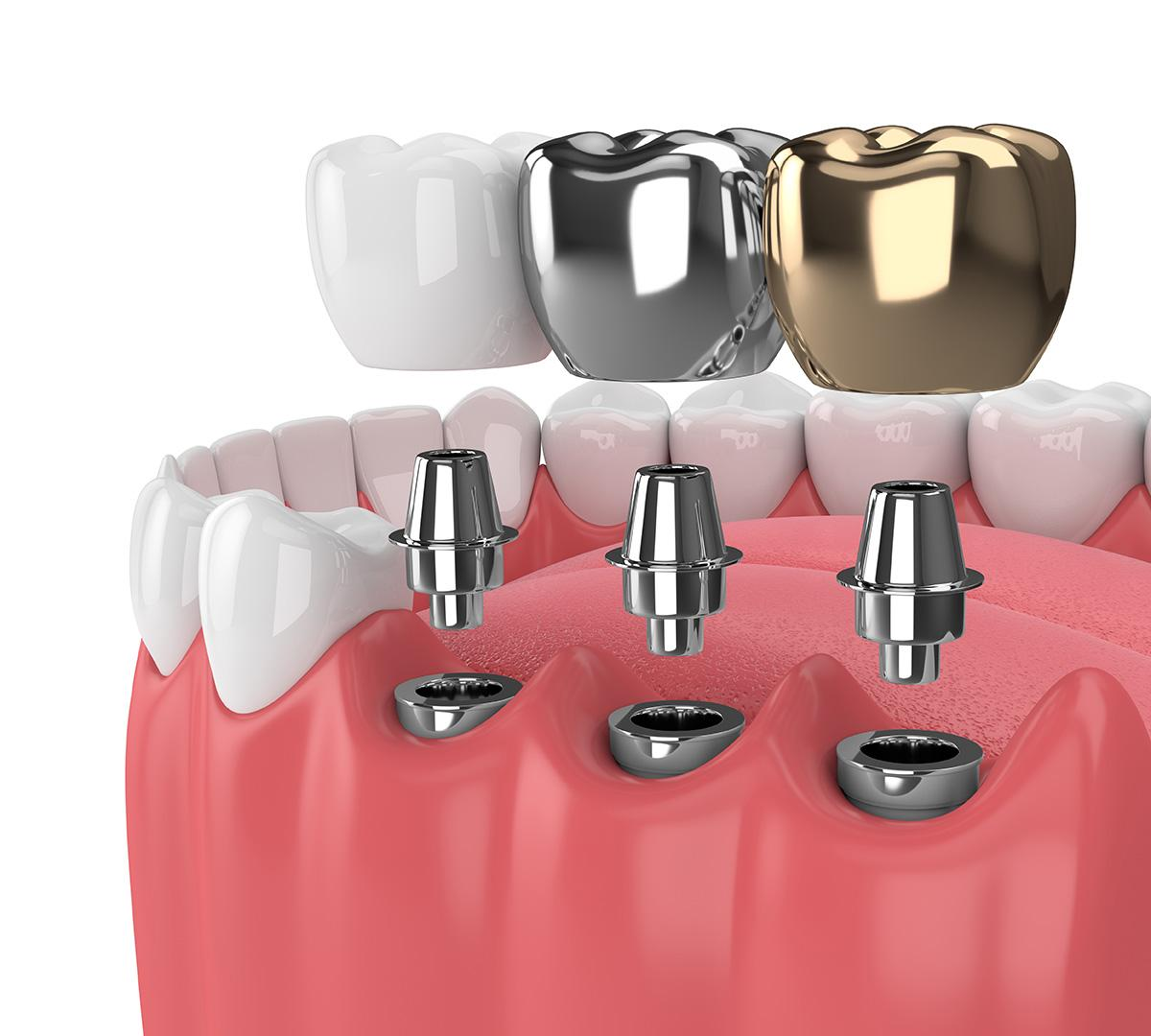 What are the best types of dental implants? - Healthy Smile Dental