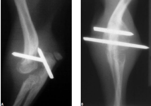 Radiographs of dog with congenital elbow luxation