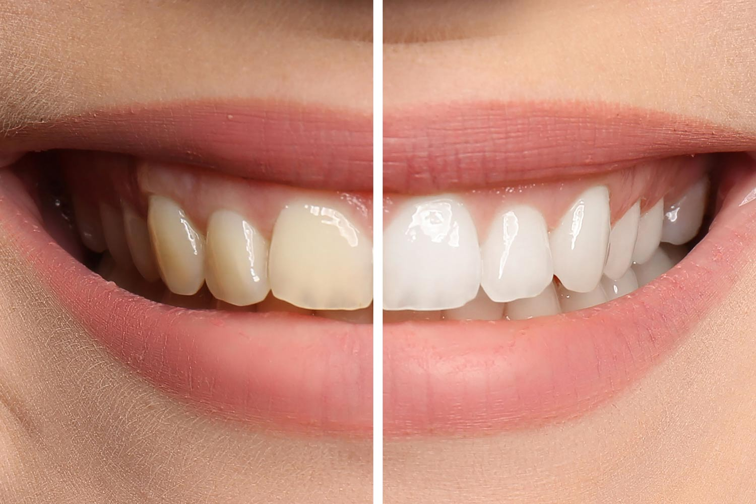 Dental Insurance – How Does It Provide for Cosmetic Teeth Whitening?