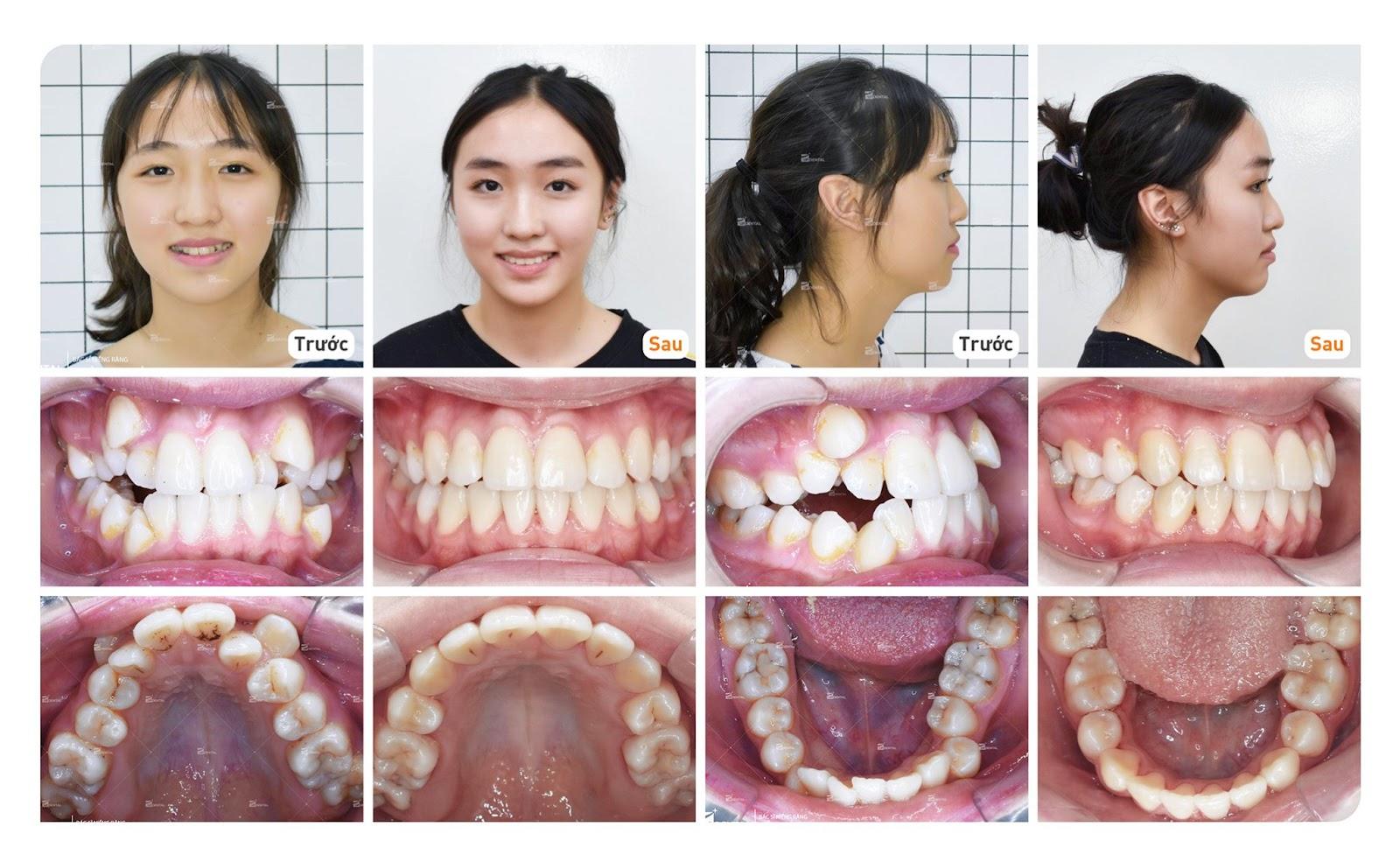 niềng răng khấp khểnh